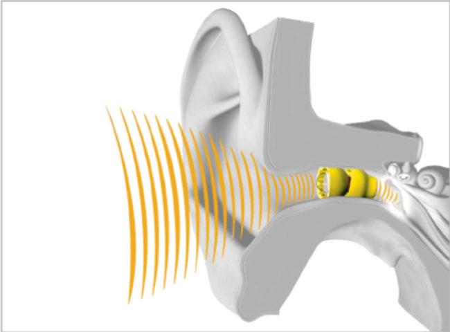 ear ad