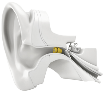 Ear-prototype